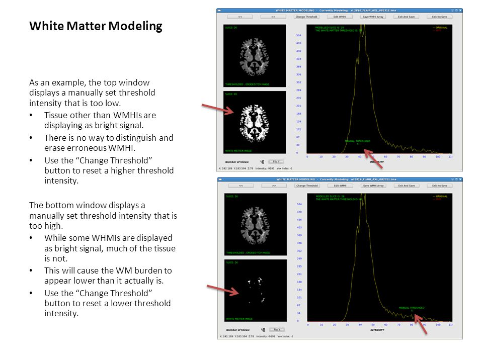 White Matter Modeling As an example, the top window displays a manually set threshold intensity that is too low. Tissue other than WMHIs are displayin