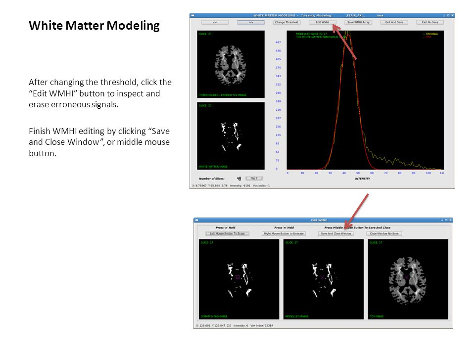 White Matter Modeling After changing the threshold, click the Edit WMHI button to inspect and erase erroneous signals.