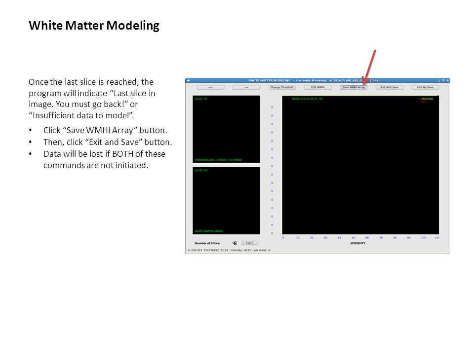 """White Matter Modeling Once the last slice is reached, the program will indicate """"Last slice in image. You must go back!"""" or """"Insufficient data to mode"""