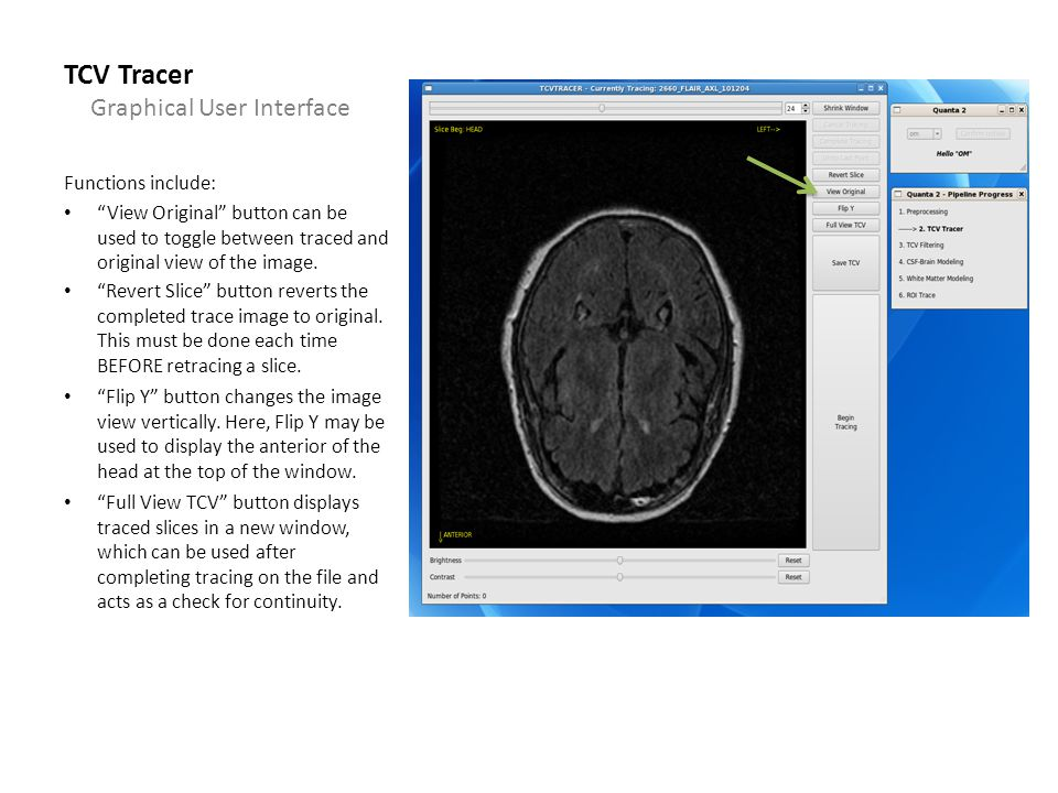 TCV Tracer Functions include: View Original button can be used to toggle between traced and original view of the image.