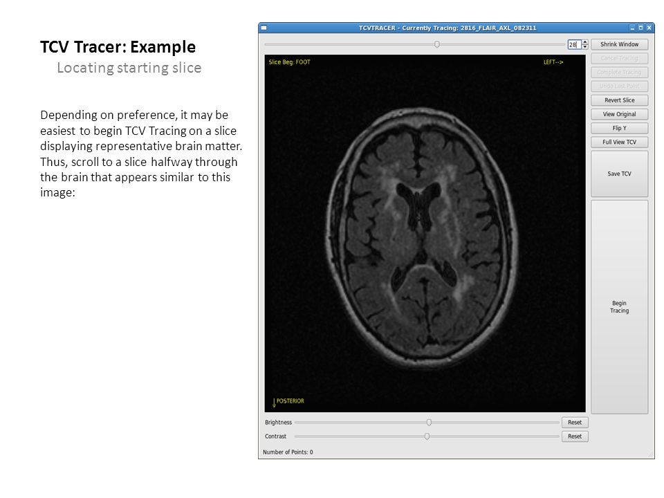 TCV Tracer: Example Depending on preference, it may be easiest to begin TCV Tracing on a slice displaying representative brain matter. Thus, scroll to