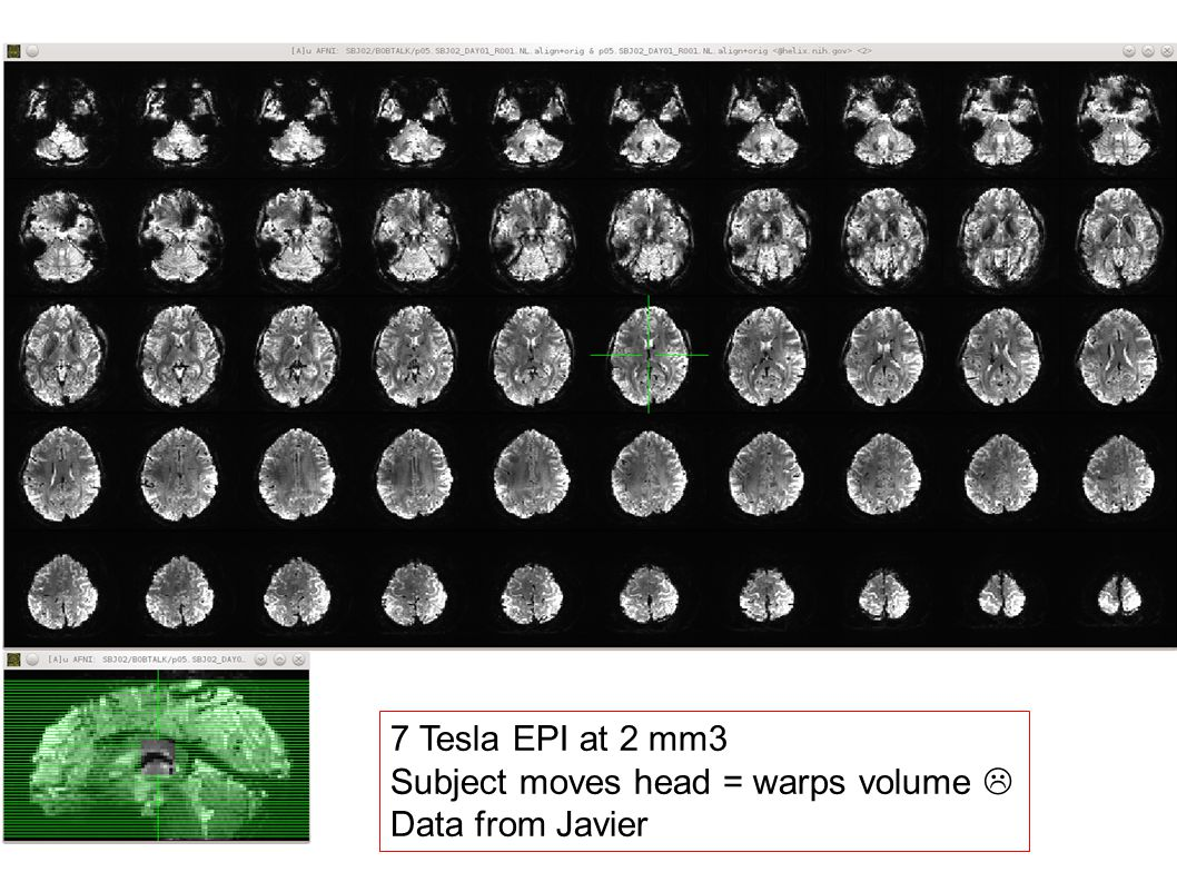 7 Tesla EPI at 2 mm3 Subject moves head = warps volume  Data from Javier
