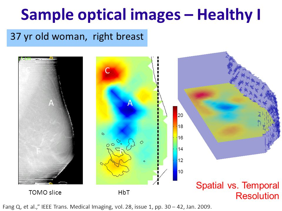 Sample optical images – Healthy I 37 yr old woman, right breast Fang Q, et al., IEEE Trans.