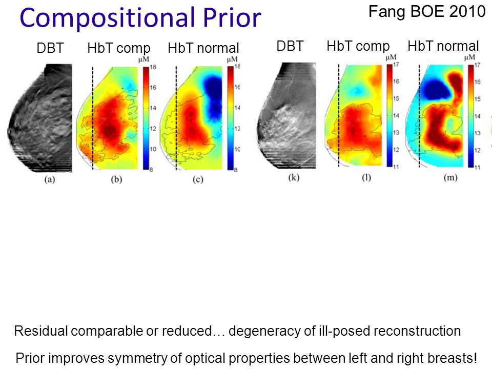 Compositional Prior Fang BOE 2010 DBTHbT compHbT normal DBTHbT compHbT normal Prior improves symmetry of optical properties between left and right breasts.