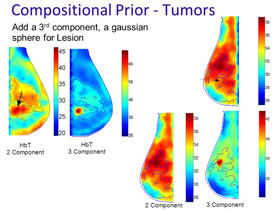 Compositional Prior - Tumors Add a 3 rd component, a gaussian sphere for Lesion HbT 2 Component HbT 3 Component 2 Component 3 Component