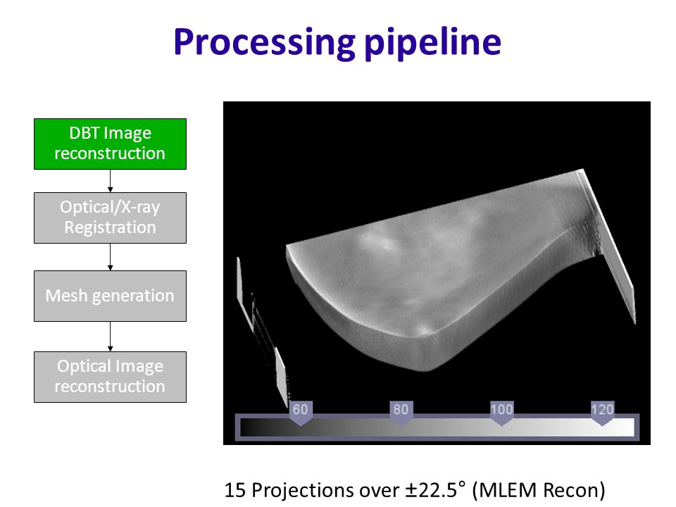 Processing pipeline DBT Image reconstruction Optical/X-ray Registration Mesh generation Optical Image reconstruction 15 Projections over ±22.5° (MLEM Recon)