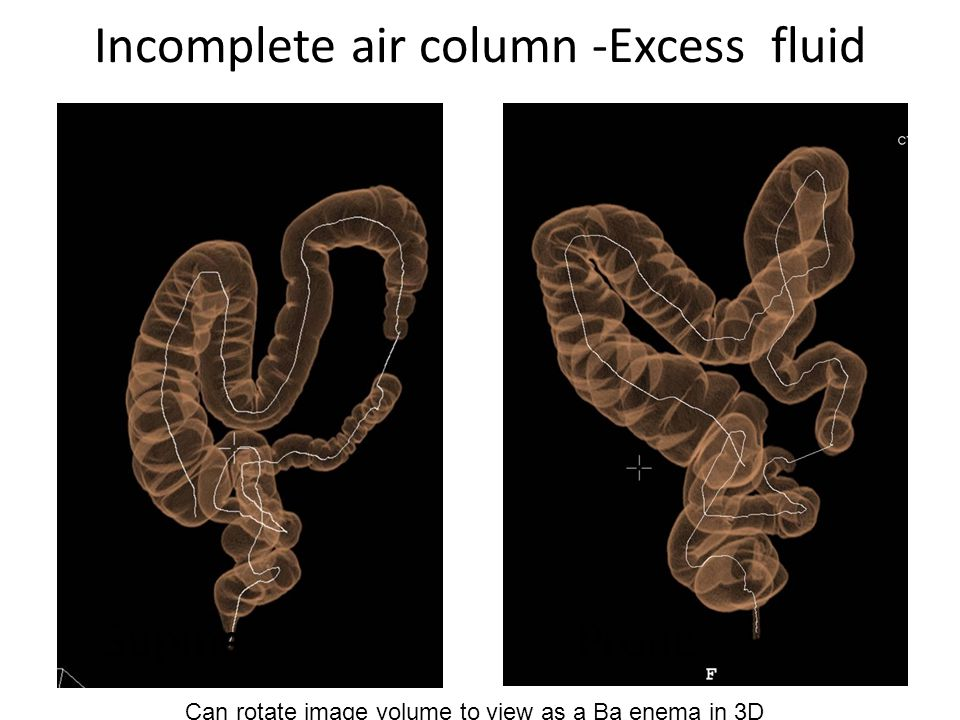 Incomplete air column -Excess fluidSupineProne Can rotate image volume to view as a Ba enema in 3D