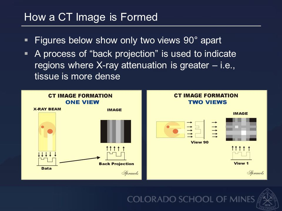How a CT Image is Formed  Figures below show only two views 90° apart  A process of back projection is used to indicate regions where X-ray attenuation is greater – i.e., tissue is more dense