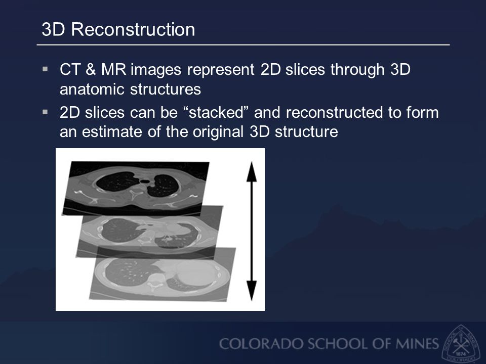 3D Reconstruction  CT & MR images represent 2D slices through 3D anatomic structures  2D slices can be stacked and reconstructed to form an estimate of the original 3D structure