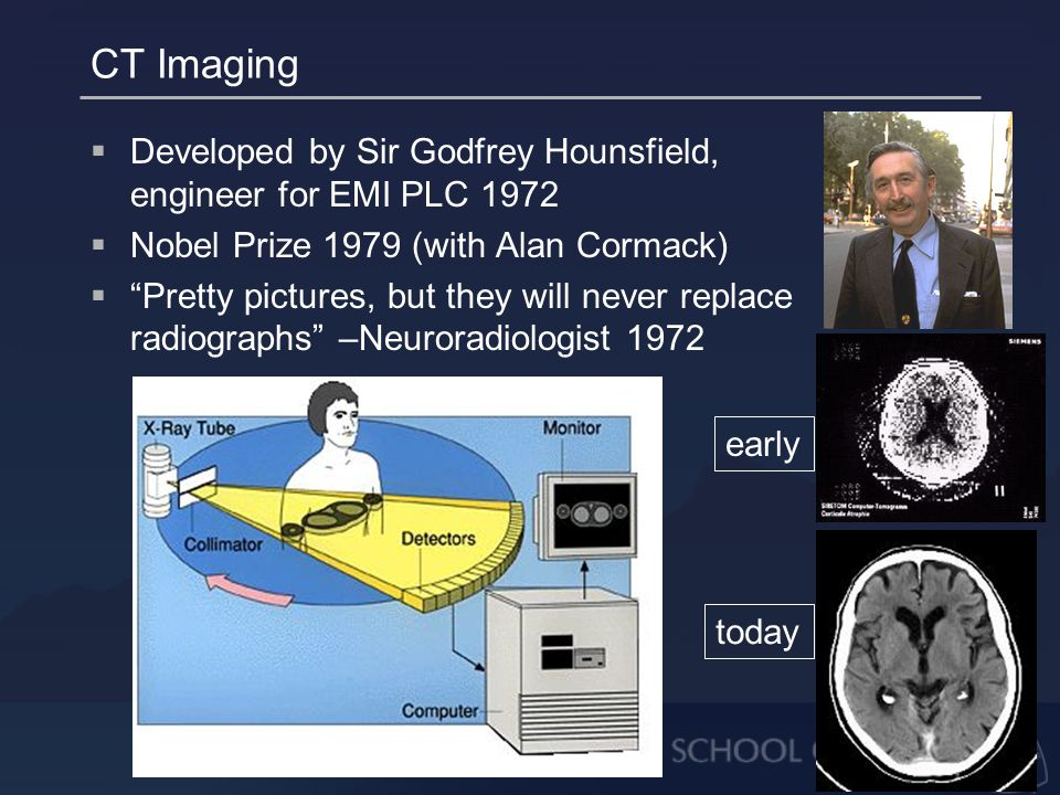 CT Imaging  Developed by Sir Godfrey Hounsfield, engineer for EMI PLC 1972  Nobel Prize 1979 (with Alan Cormack)  Pretty pictures, but they will never replace radiographs –Neuroradiologist 1972 early today