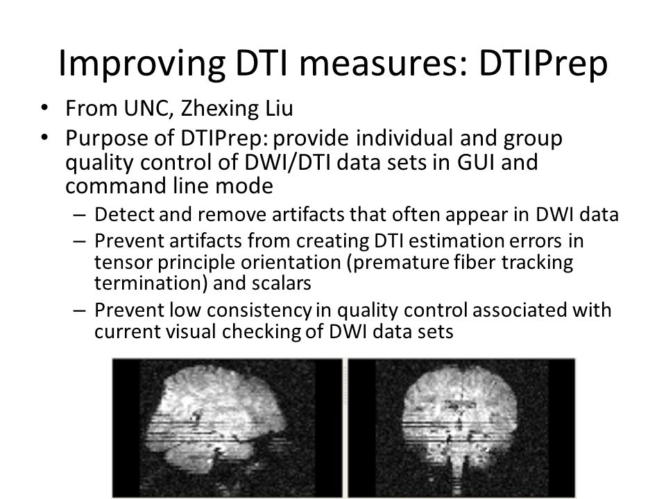 Improving DTI measures: DTIPrep From UNC, Zhexing Liu Purpose of DTIPrep: provide individual and group quality control of DWI/DTI data sets in GUI and command line mode – Detect and remove artifacts that often appear in DWI data – Prevent artifacts from creating DTI estimation errors in tensor principle orientation (premature fiber tracking termination) and scalars – Prevent low consistency in quality control associated with current visual checking of DWI data sets
