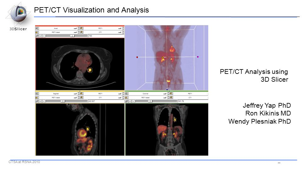 -- CTSA at RSNA 2010 PET/CT Analysis using 3D Slicer Jeffrey Yap PhD Ron Kikinis MD Wendy Plesniak PhD PET/CT Visualization and Analysis