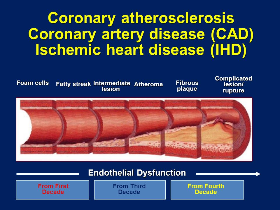 Coronary atherosclerosis Coronary artery disease (CAD) Ischemic heart disease (IHD) Foam cells Fatty streak Intermediatelesion Atheroma Fibrousplaque Complicatedlesion/rupture From First Decade From Third Decade From Fourth Decade Endothelial Dysfunction