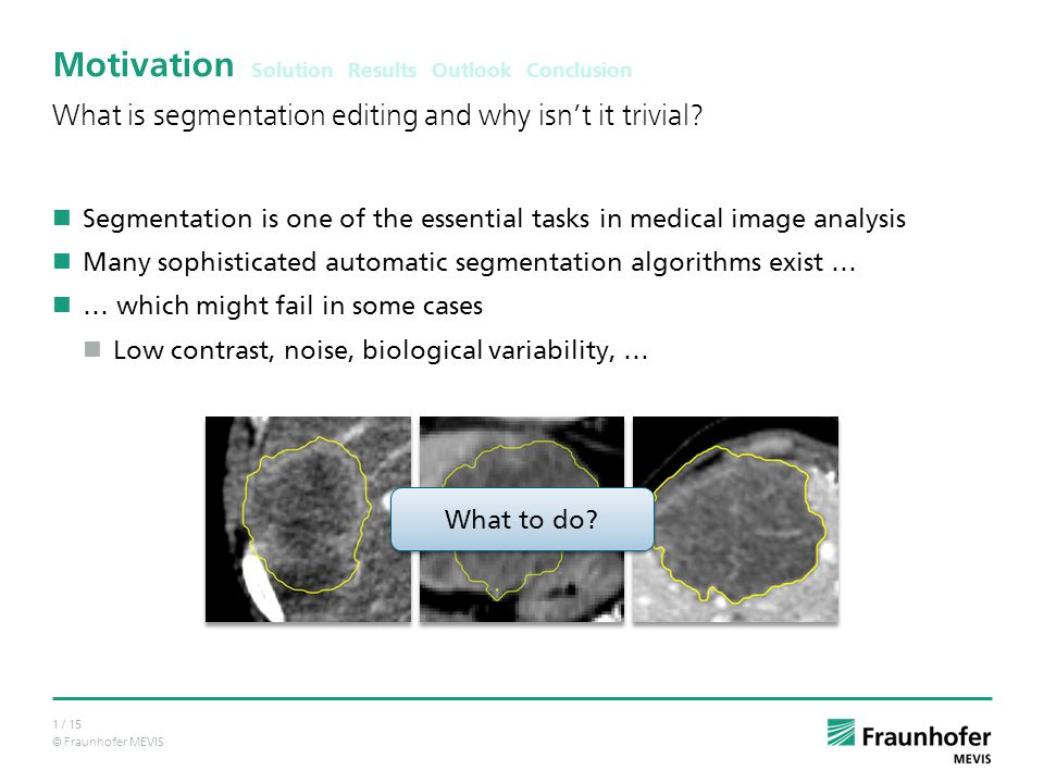 © Fraunhofer MEVIS 1 / 15 Motivation Segmentation is one of the essential tasks in medical image analysis Many sophisticated automatic segmentation algorithms exist … … which might fail in some cases Low contrast, noise, biological variability, … What is segmentation editing and why isn't it trivial.