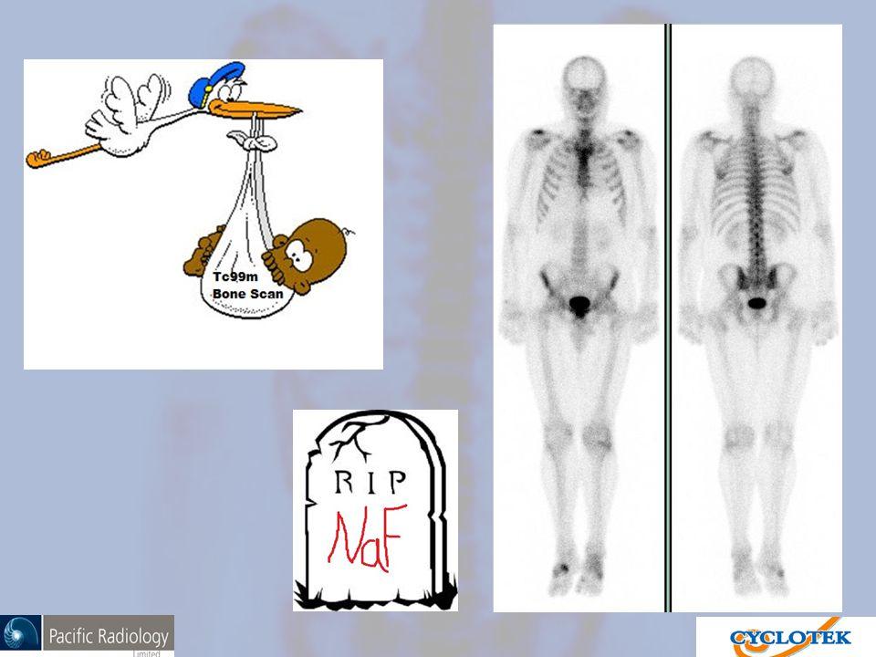 99m Tc Bone Scan