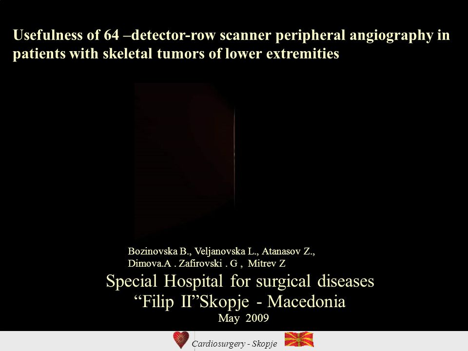 Cardiosurgery - Skopje Usefulness of 64 –detector-row scanner peripheral angiography in patients with skeletal tumors of lower extremities Special Hospital for surgical diseases Filip II Skopje - Macedonia Bozinovska B., Veljanovska L., Atanasov Z., Dimova.A.