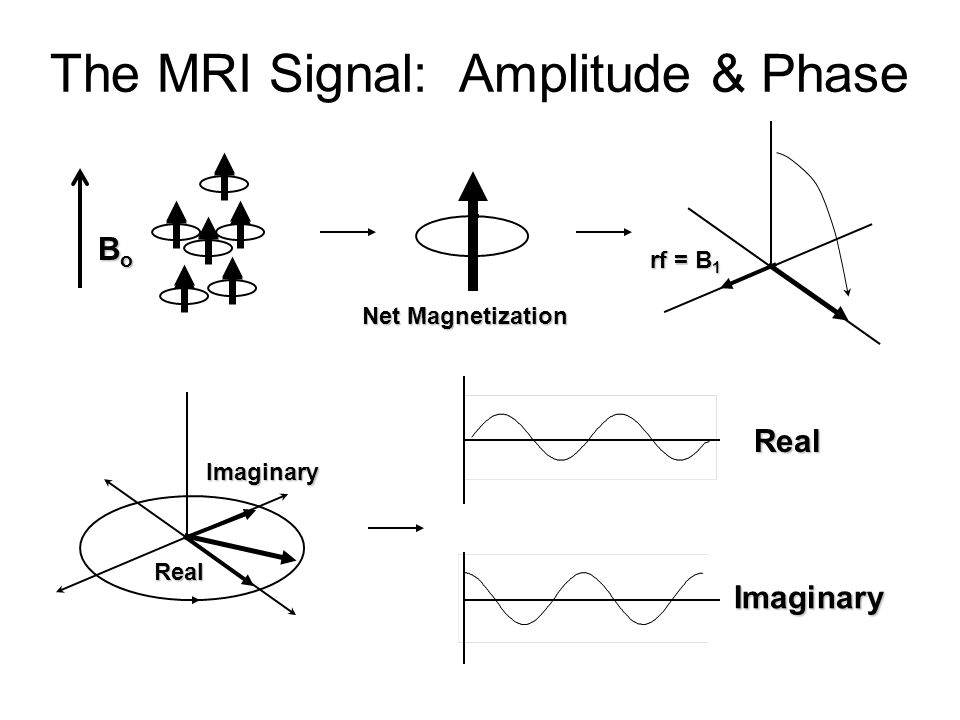 The MRI Signal: Amplitude & Phase Net Magnetization BoBoBoBo rf = B 1 Real Imaginary Real Imaginary