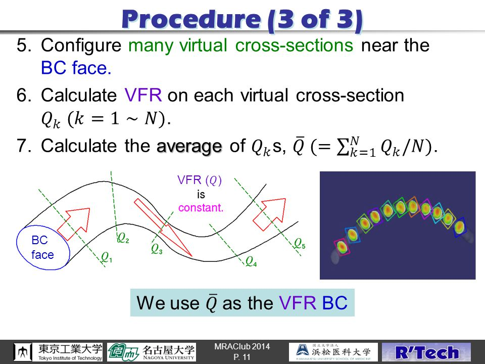 MRAClub 2014 Procedure (3 of 3) P. 11 BC face