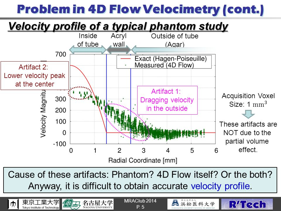 MRAClub 2014 Problem in 4D Flow Velocimetry (cont.) Velocity profile of a typical phantom study P. 5 Outside of tube (Agar) Inside of tube Acryl wall
