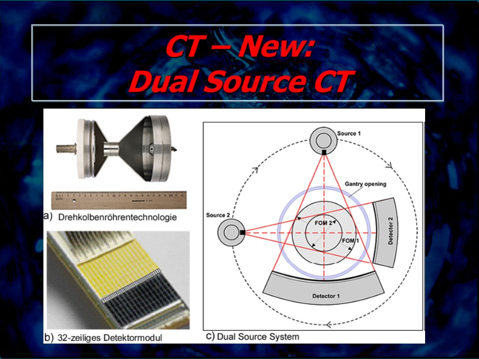 CT – New: Dual Source CT