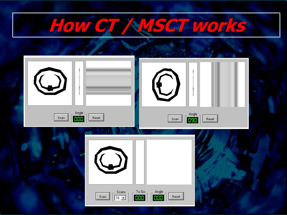 How CT / MSCT works