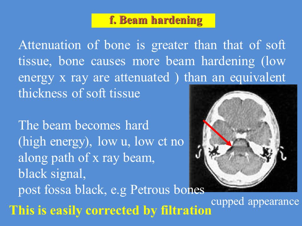 f. Beam hardening Attenuation of bone is greater than that of soft tissue, bone causes more beam hardening (low energy x ray are attenuated ) than an