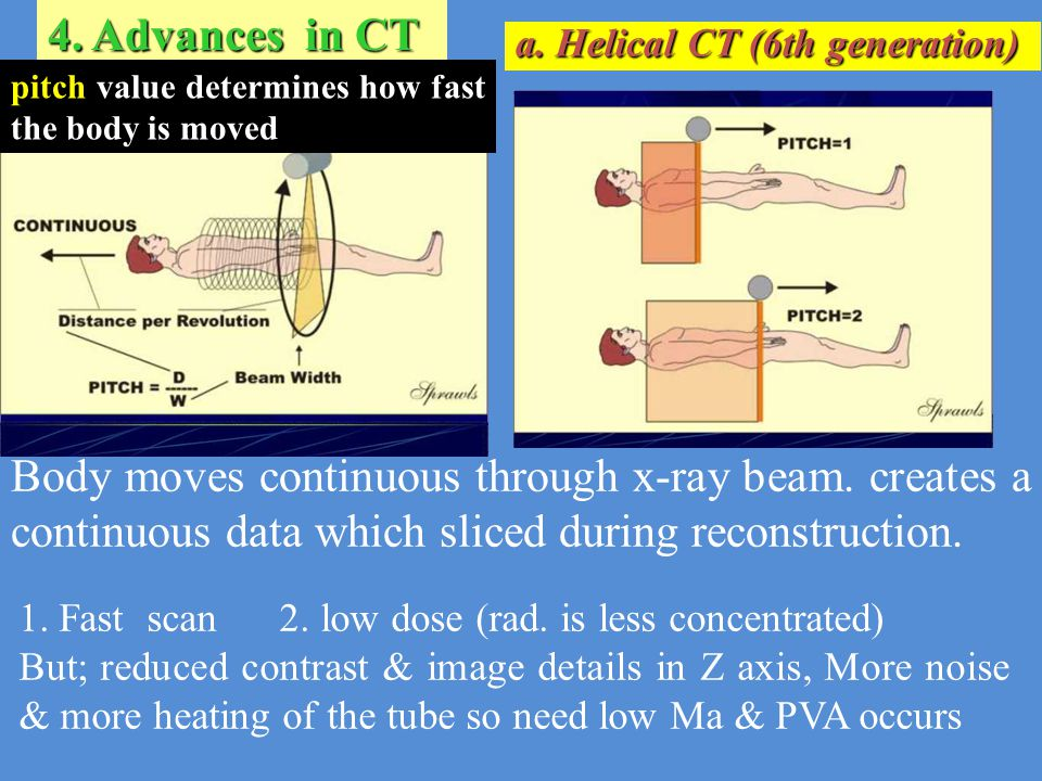 1. Fast scan 2. low dose (rad. is less concentrated) But; reduced contrast & image details in Z axis, More noise & more heating of the tube so need lo