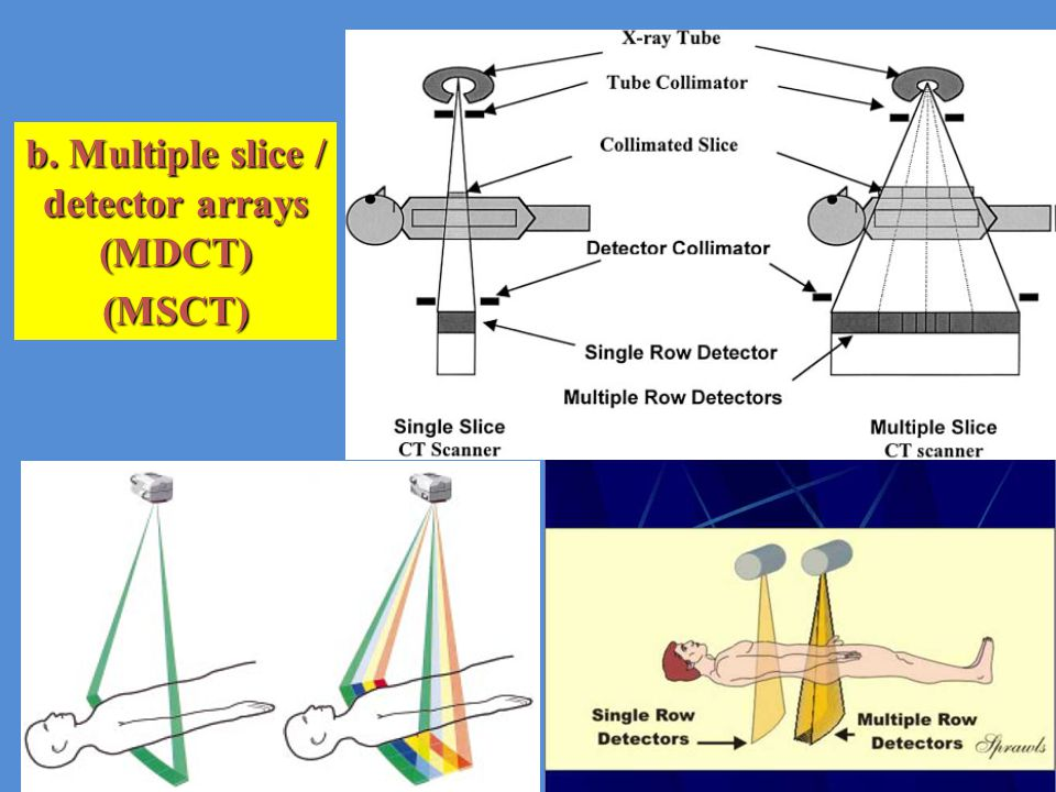 b. Multiple slice / detector arrays (MDCT) (MSCT)