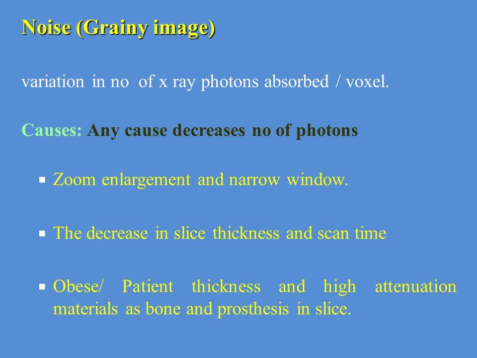  It limits image quality (decreases CR & SR).