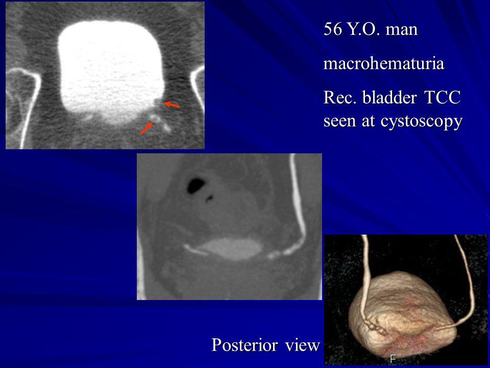 56 Y.O. man macrohematuria Rec. bladder TCC seen at cystoscopy Posterior view