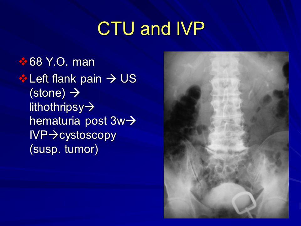 CTU and IVP  68 Y.O.