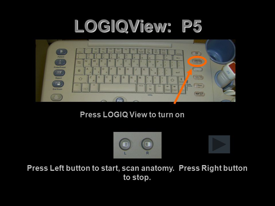 LOGIQView: P5 Press LOGIQ View to turn on Press Left button to start, scan anatomy. Press Right button to stop.