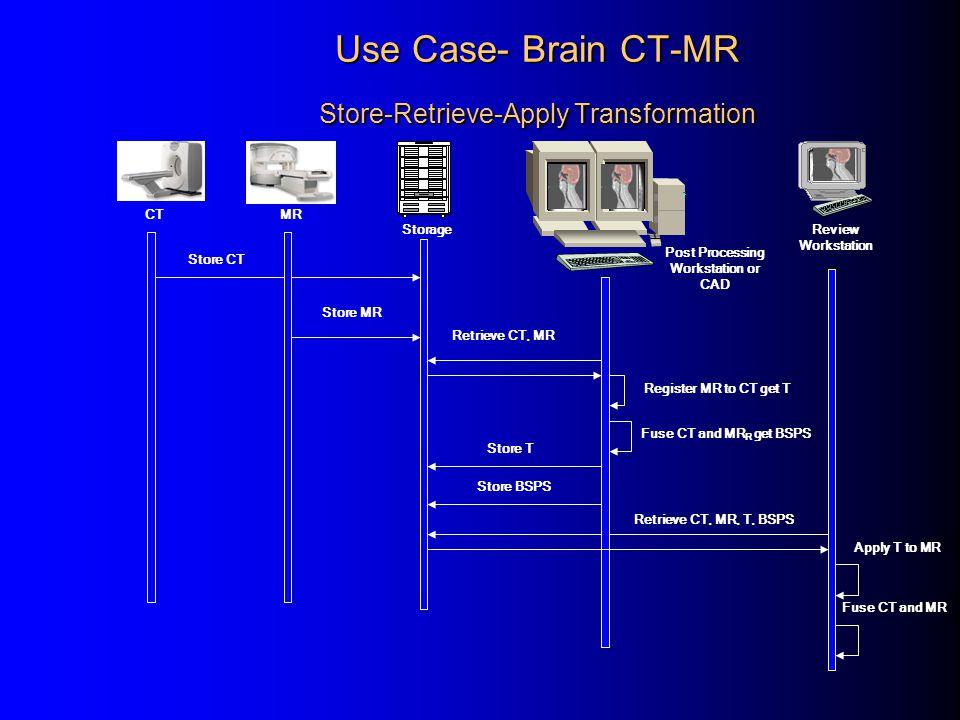 Use Case- Brain CT-MR Store-Retrieve-Apply Transformation Store CT Store MR Retrieve CT, MR Register MR to CT get T Store T Store BSPS Retrieve CT, MR