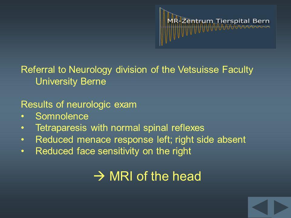 FSE T2-weighting transverse dorsal right Level of caudate nucleus (c)Level of thalamus (t) tt c c