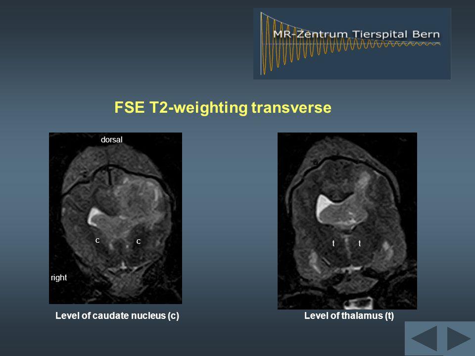 FLAIR (CSF suppression) dor rostral right rostral BASG dor