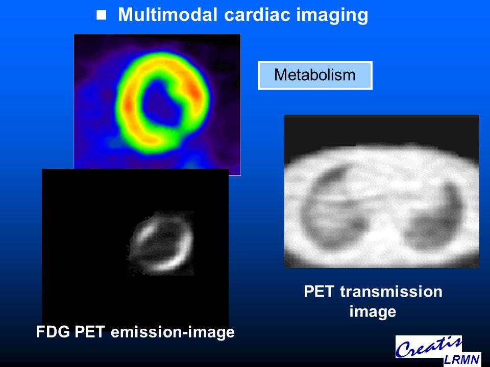 Multimodal cardiac imaging Metabolism FDG PET emission-image PET transmission image LRMN
