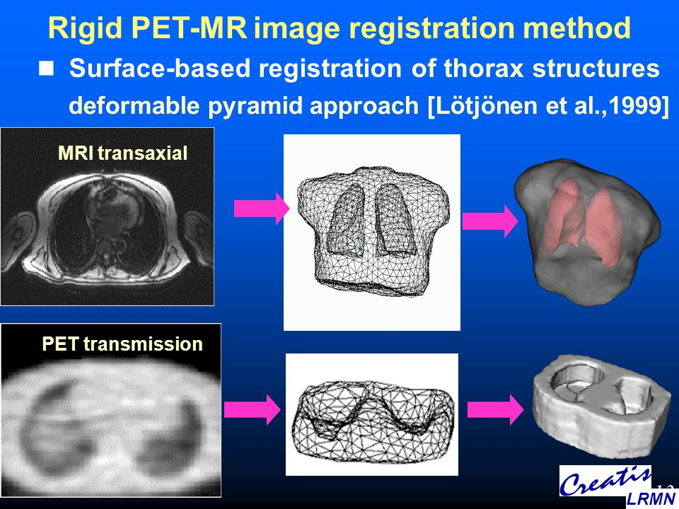 Surface-based registration of thorax structures deformable pyramid approach [Lötjönen et al.,1999] Rigid PET-MR image registration method MRI transaxi