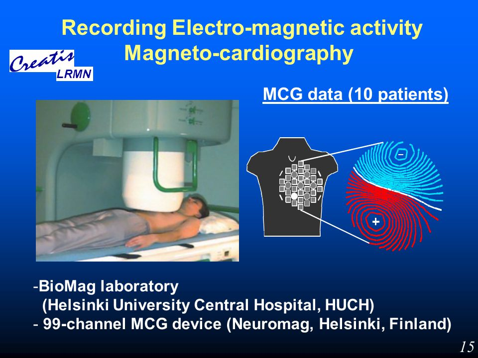 Recording Electro-magnetic activity Magneto-cardiography MCG data (10 patients) -BioMag laboratory (Helsinki University Central Hospital, HUCH) - 99-c