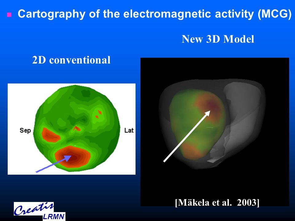 Cartography of the electromagnetic activity (MCG) 2D conventional New 3D Model [Mäkela et al.