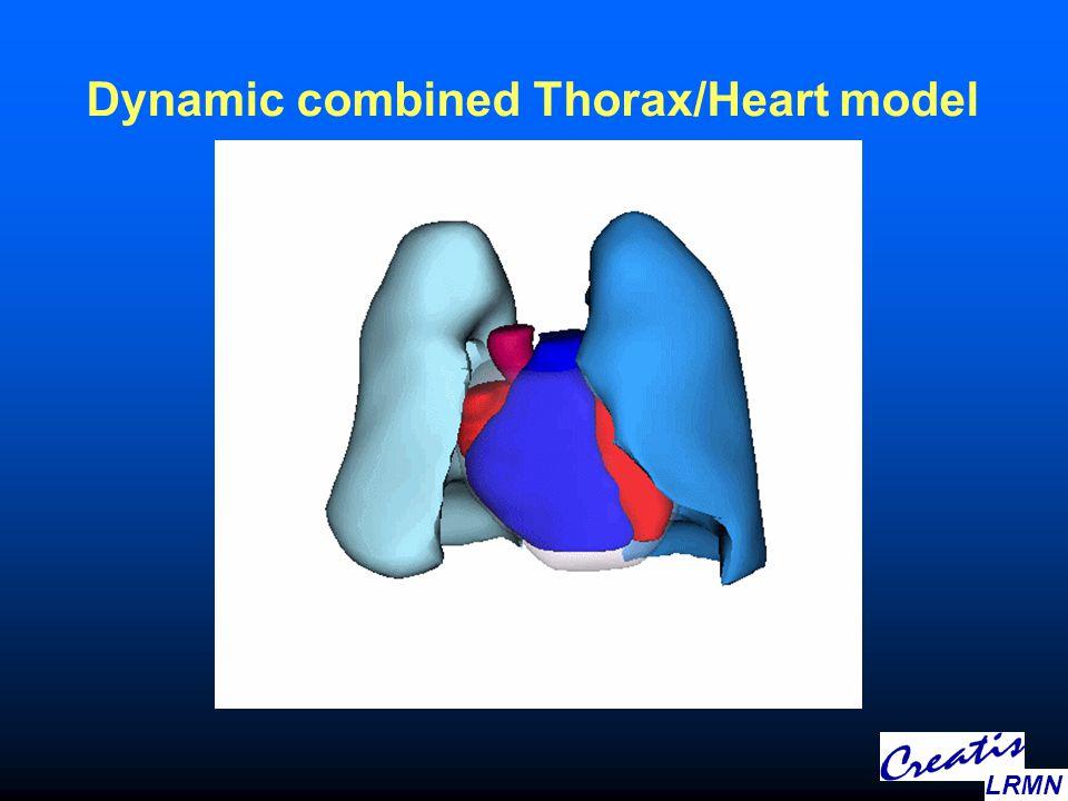 Dynamic combined Thorax/Heart model LRMN