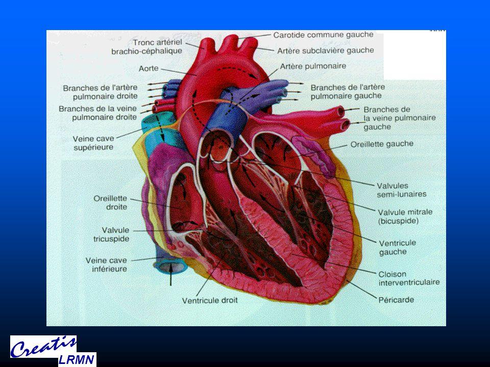 Complex Anatomy short axis Long-axis LRMN