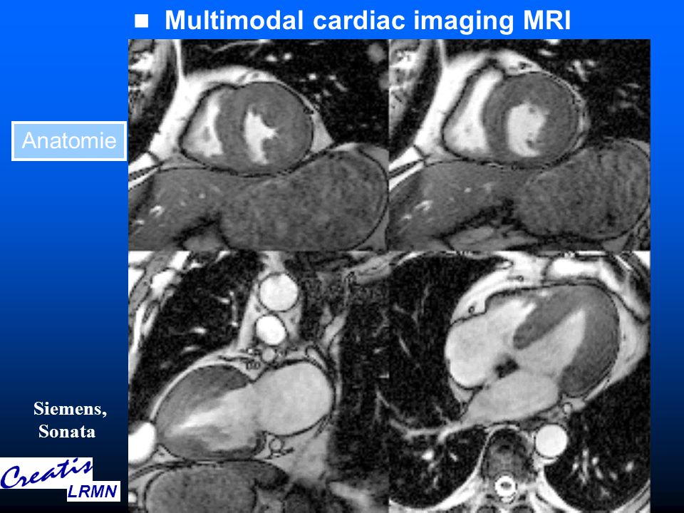 Heart anatomical surfaces and volumes 3D SPECT, XRays or MRI LRMN