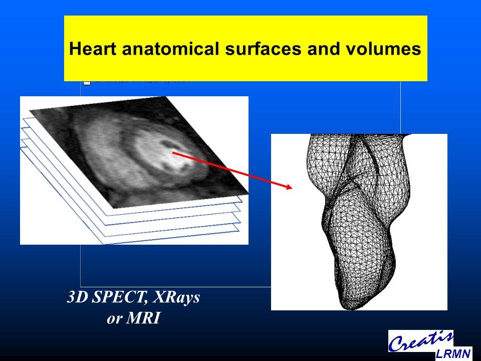 3D multimodal cardiac images Creatis & INRIA 3D deformable finite elements LRMN