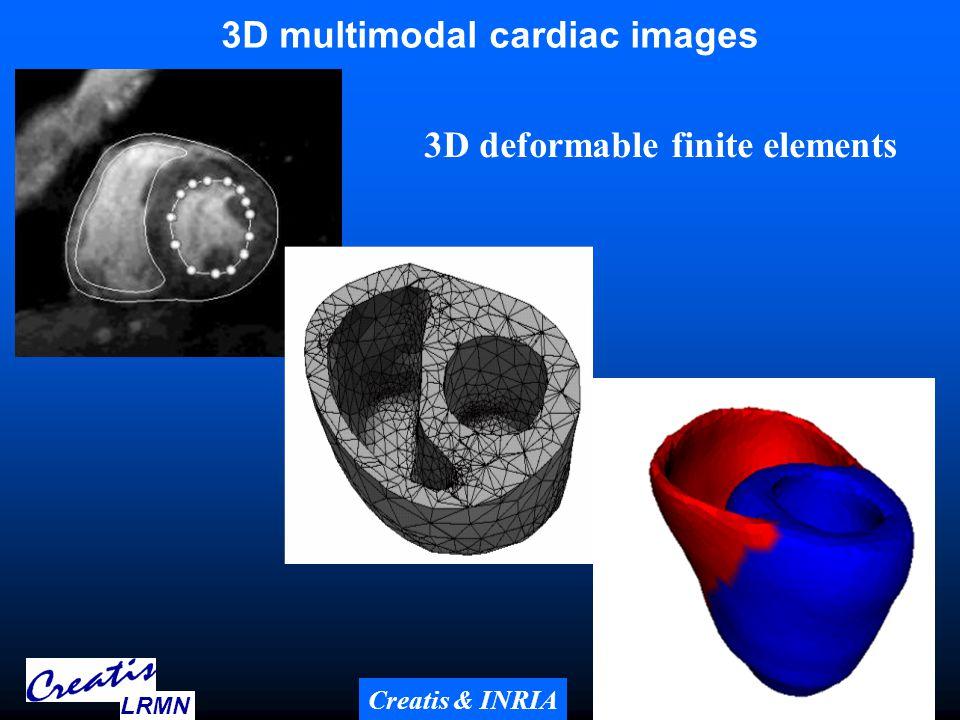 Deformable elastic template for 3D segmentation (Quoc Cuong Pham, PhD thesis Creatis, INPG, 2002) Initial template Nodes : 5197, Elements : 22368 9 LRMN