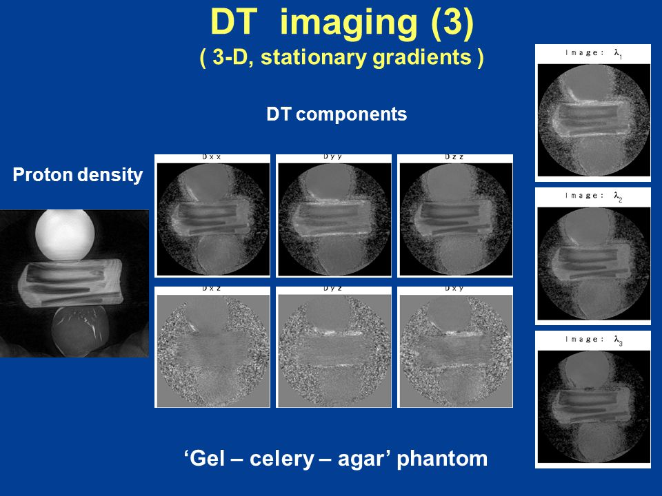 DT imaging (3) ( 3-D, stationary gradients ) 'Gel – celery – agar' phantom Proton density DT components