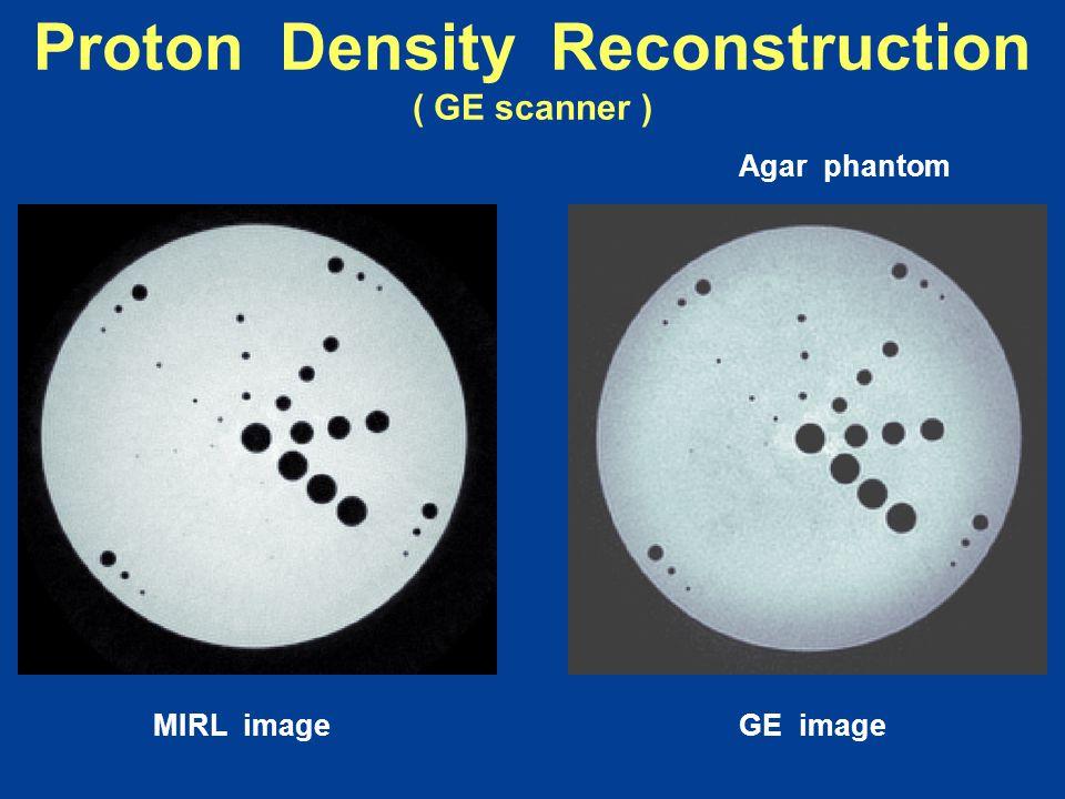 MIRL imageGE image Proton Density Reconstruction ( GE scanner ) Agar phantom