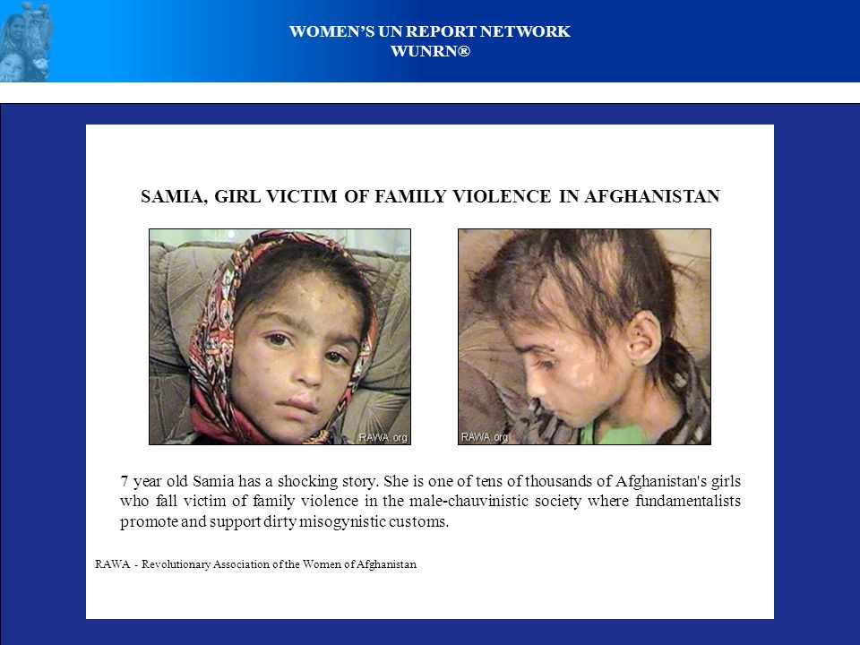 SAMIA, GIRL VICTIM OF FAMILY VIOLENCE IN AFGHANISTAN RAWA - Revolutionary Association of the Women of Afghanistan 7 year old Samia has a shocking story.