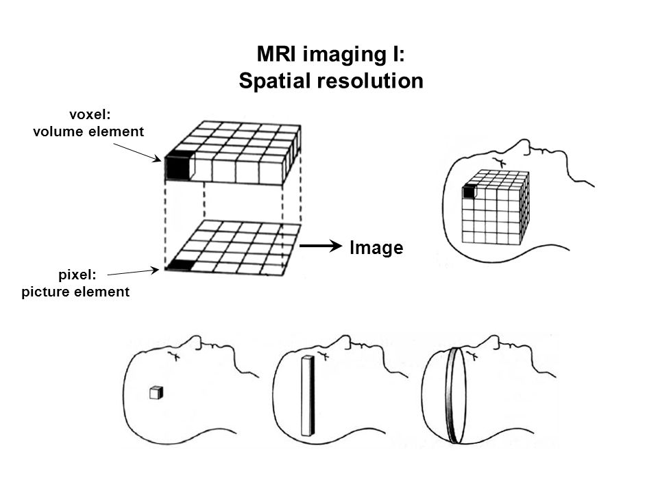 voxel: volume element pixel: picture element Image MRI imaging I: Spatial resolution
