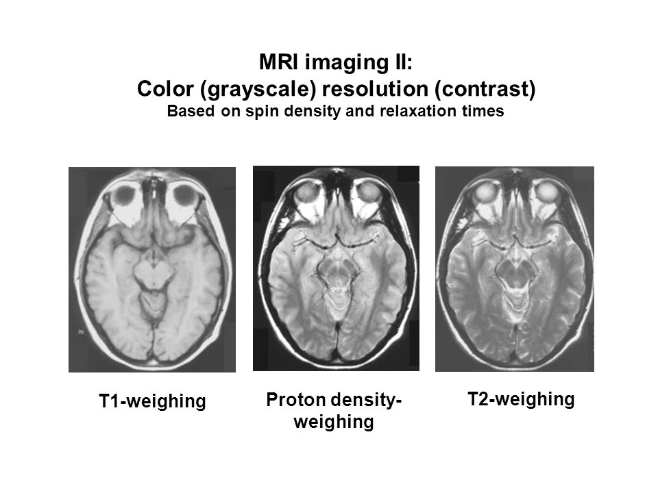MRI imaging II: Color (grayscale) resolution (contrast) Based on spin density and relaxation times T1-weighing T2-weighing Proton density- weighing