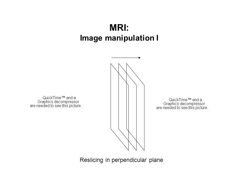 MRI: Image manipulation I Reslicing in perpendicular plane